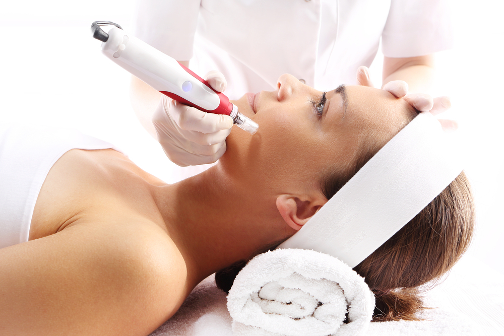 Microneedling with Platelet Rich Plasma (PRP)